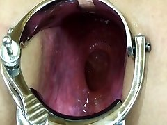 Elmer wife extraordinary anal speculum have fun