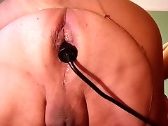 Anal pumping and propolase