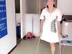 Chinese amputee female