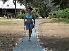 amputiranec na plaži