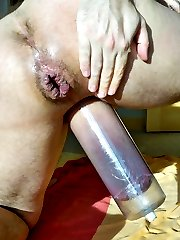 Fisting anal and more gall