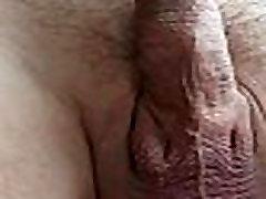 Golden Chain In Urethra