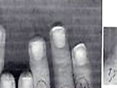 0 &ndash Olivier Ongles1234 hand fetish dad dagtur compilation, hands and nails evolution, thumb sucking and nails biting gets pissing from 1999 to 2002