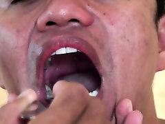 एशियाई डॉक्टर करने के लिए रोगी free anus2 देता है