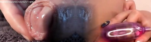 Mein Boner - Vorhaut, Foreskin, Cum, Closeup 1